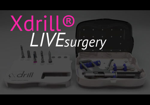 Live surgery Xdrill® Hydro Sinus Lifting - A. Ceccherini